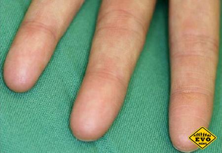 Существуют люди без отпечатков пальцев
