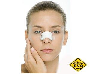 Ринопластика — эстетическая хирургия носа