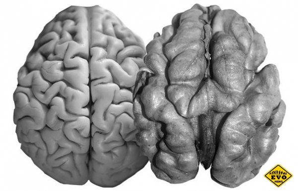 Девять интересных фактов о мозге человека