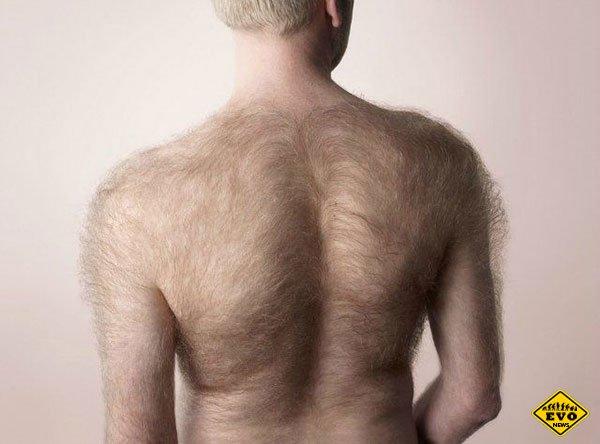Почему у некоторых людей повышенная волосатость?